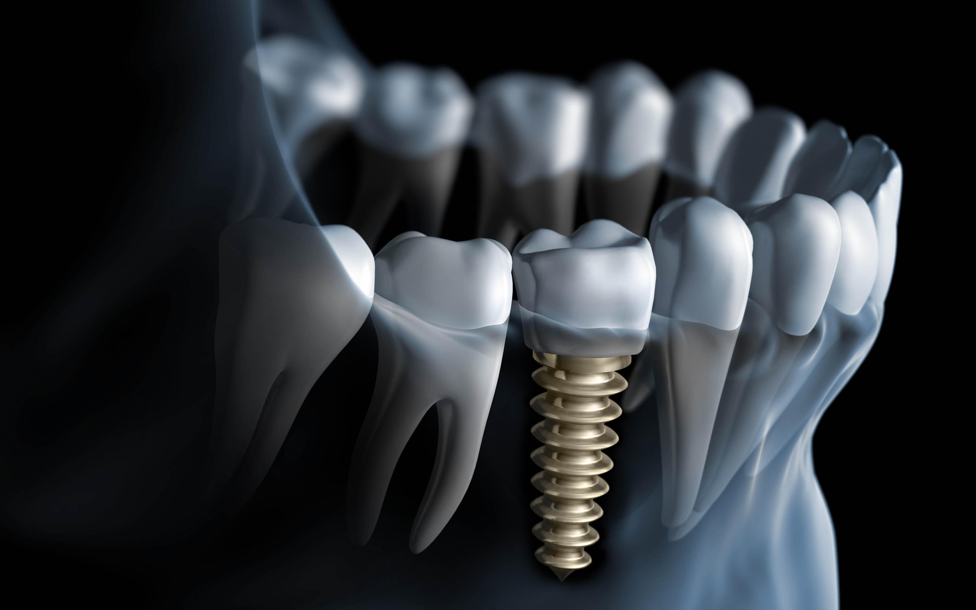 implantatbehandlingar och kirurgi solna stockholm