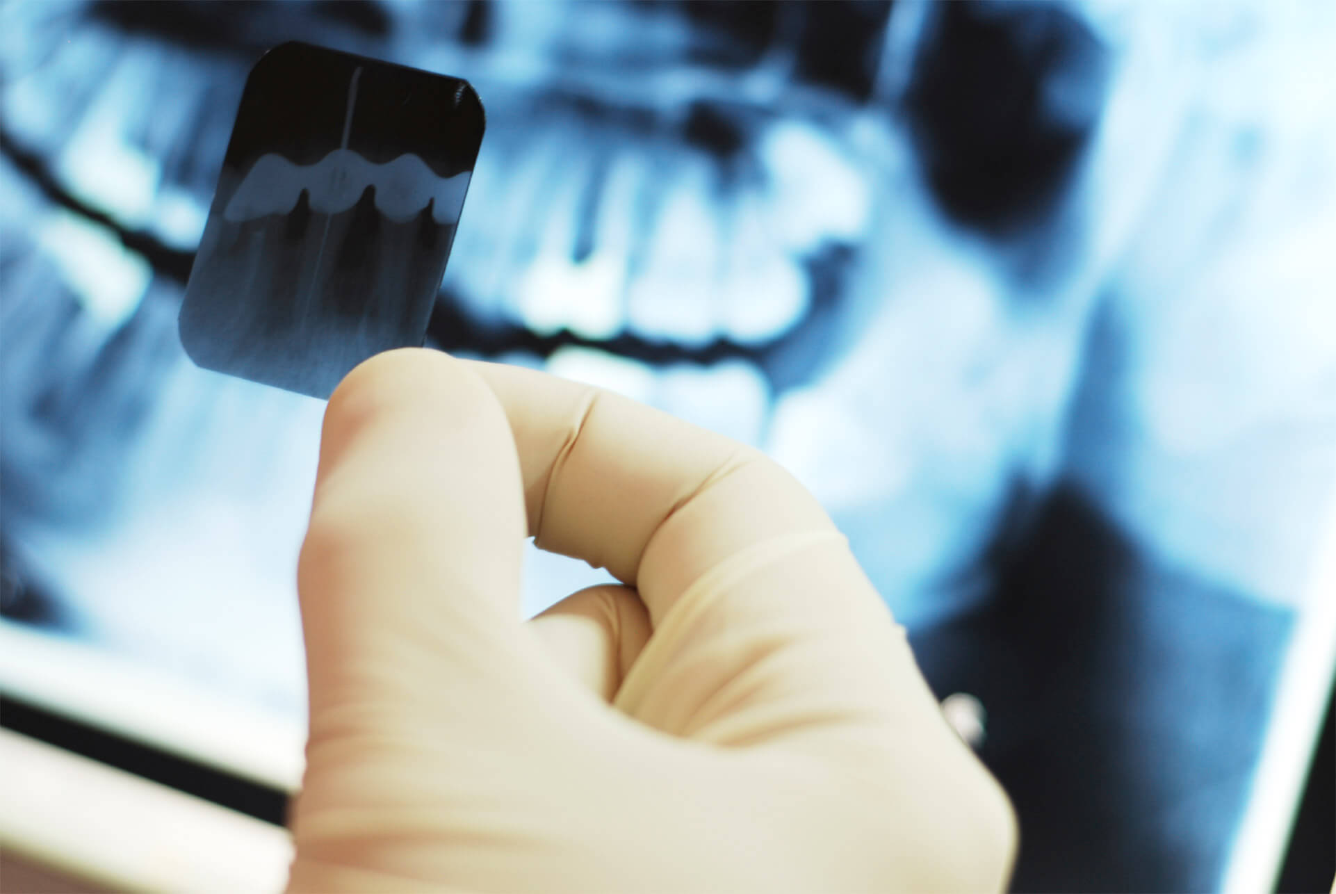 Panoramaröntgen Tandläkare Solna