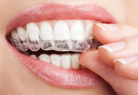 Behandlingar tandreglering invisalign tandläkare solna