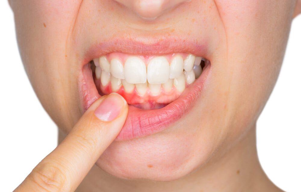 gingivit Hagakliniken i Solna AB 1